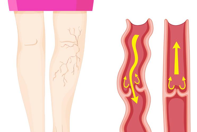 Ilustración de mujer con varices en las piernas